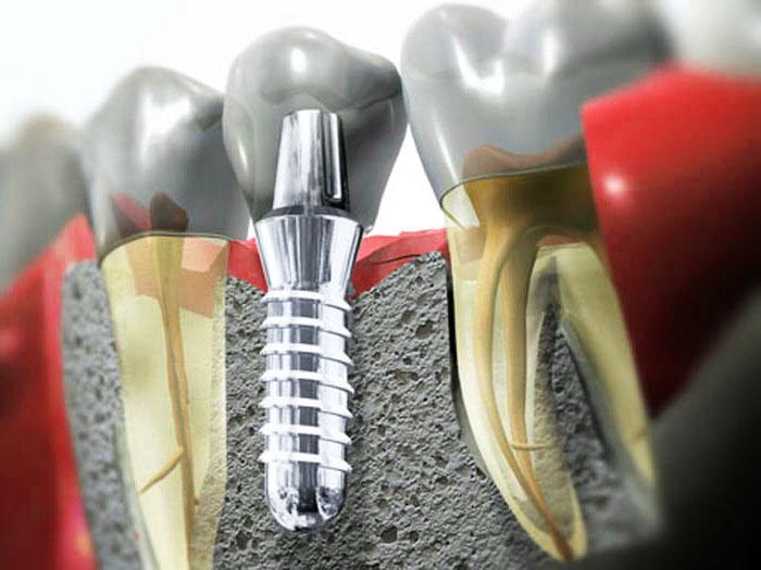 Физические нагрузки при имплантации зубов